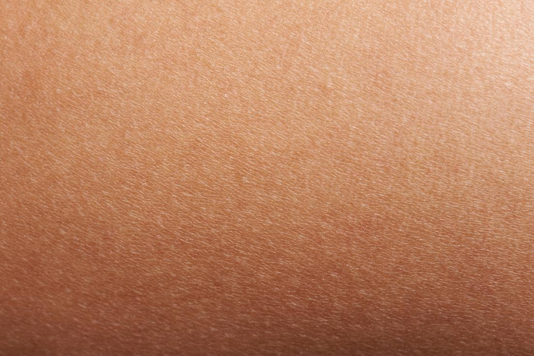 Close up image of skin