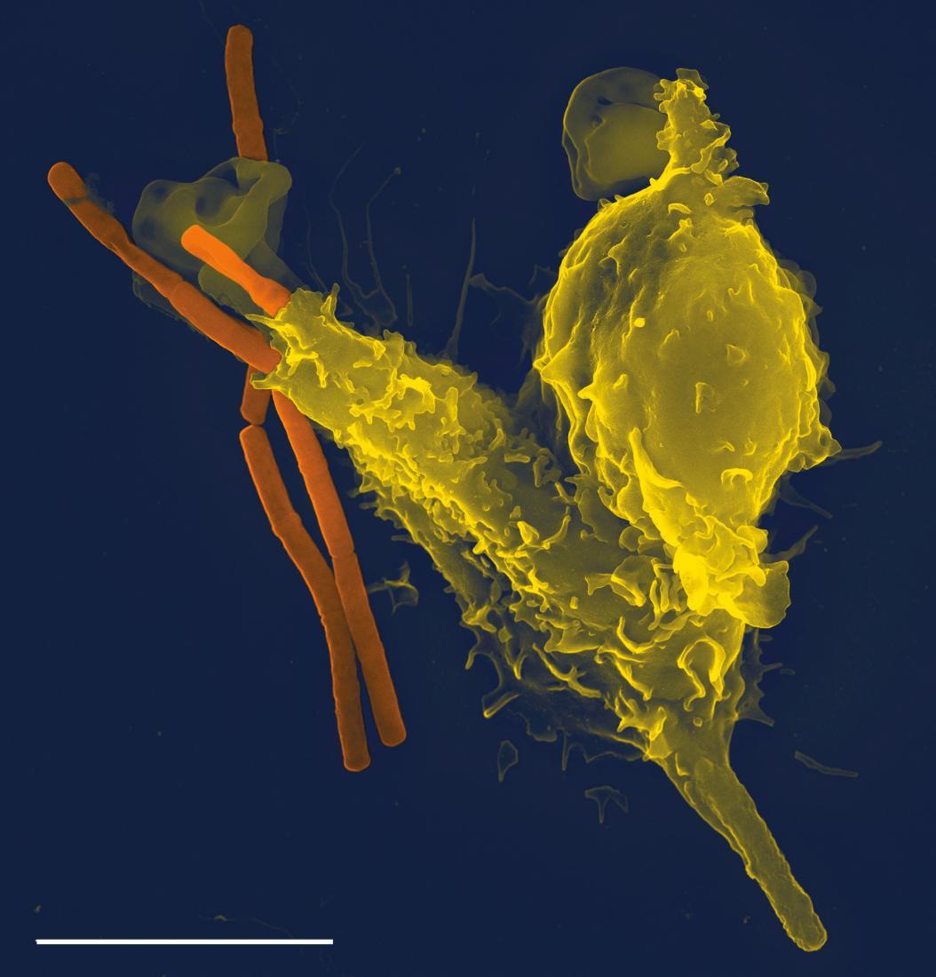 нейтрофил (желтый), поглощающий бактерии сибирской язвы (оранжевый) Изображение предоставлено Volker Brinkmann